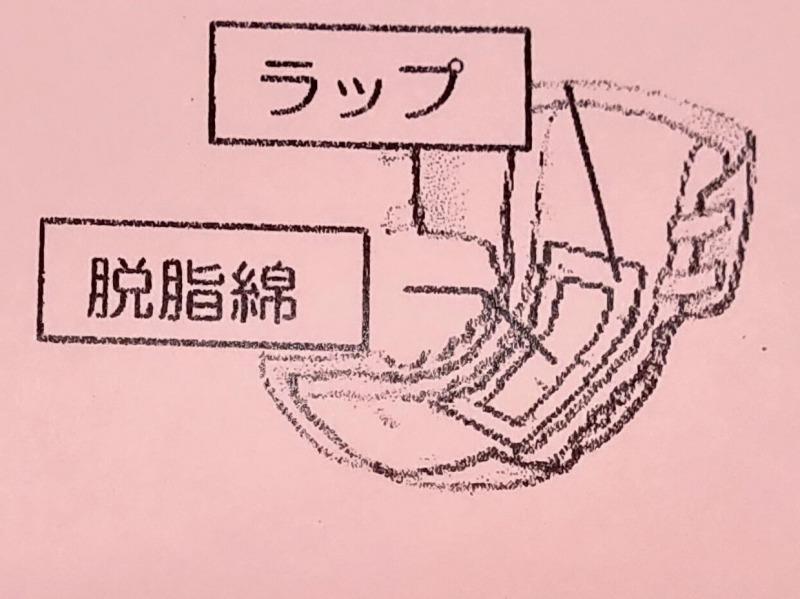 おむつの場合の採尿の方法